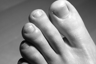 Toes and warts Care